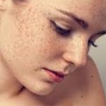 糖化の肌荒れや肌の色を防ぐには?食べ物やサプリ・化粧品で改善できる?