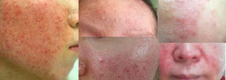 肌 断食 皮膚 科
